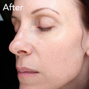 microneedling-face-treatment-after-example-herb-and-ohm