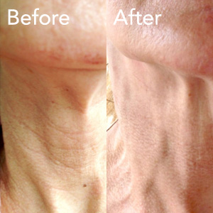 microneedling-neck-treatment-before-and-after-herb-and-ohm