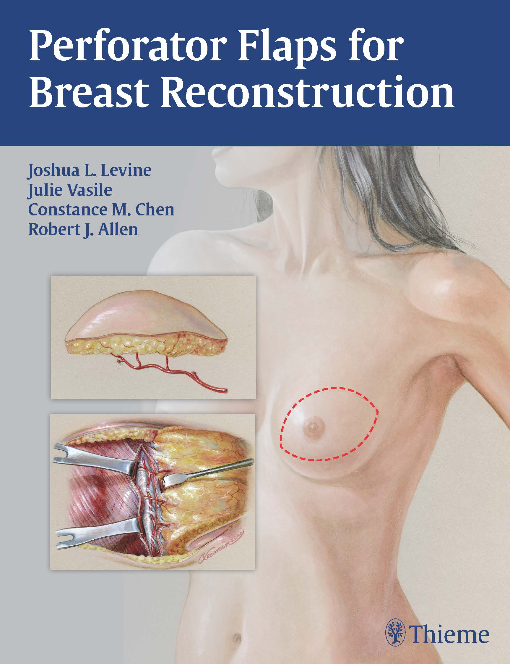 Perforator Flaps for Breast Reconstruction Book Cover Final - 11-04-15.jpg