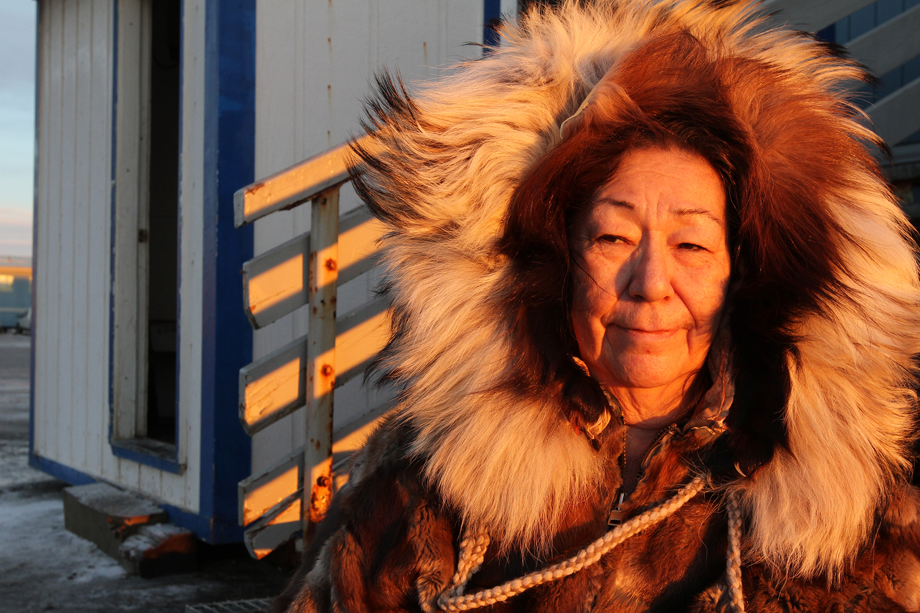 Ruth Aiken slipped on the ice and broke her wrist,but insisted on taking a photo while wearing the fur parka she sewed with her mother before going to the hospital. For more serious issues, travel to Anchorage or Fairbanks is common.