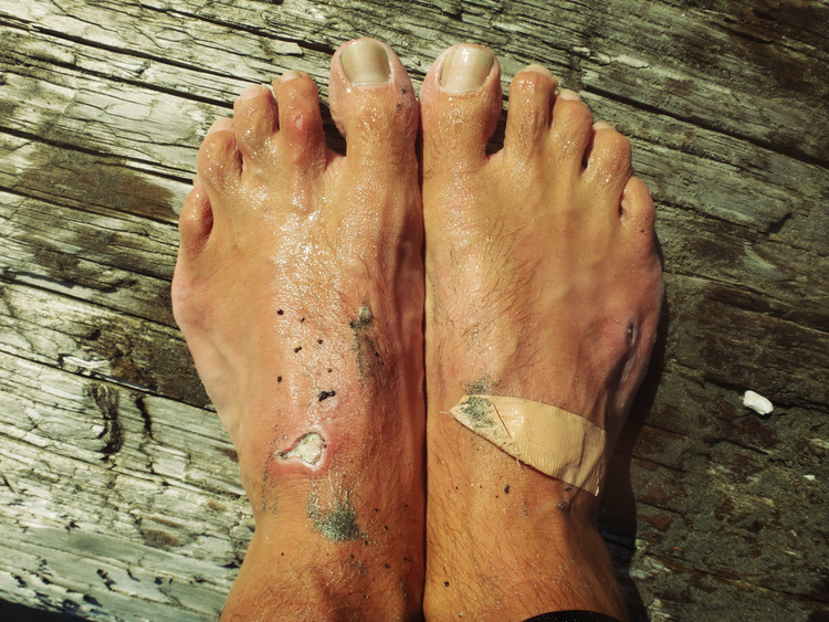 Sea sores and waterlogged feet. Sorry lads.