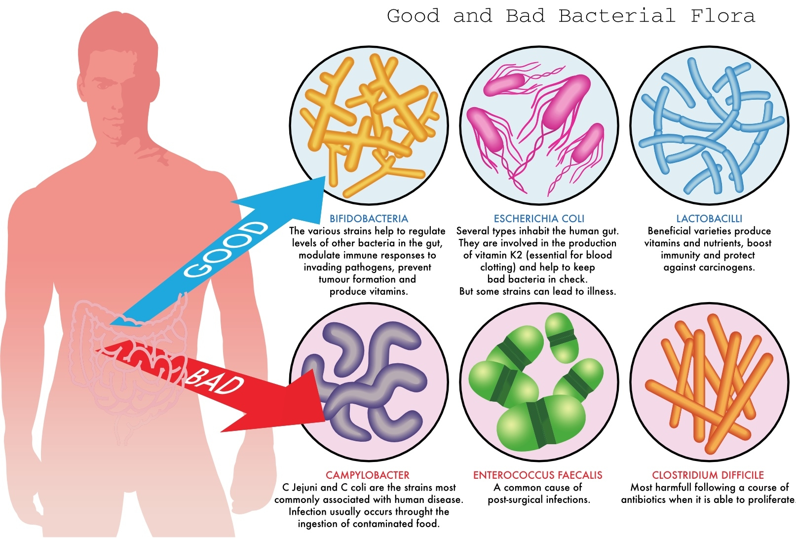 Image:   This picture offers a clearer view on the role of E.coli in the gut, click to enlarge.