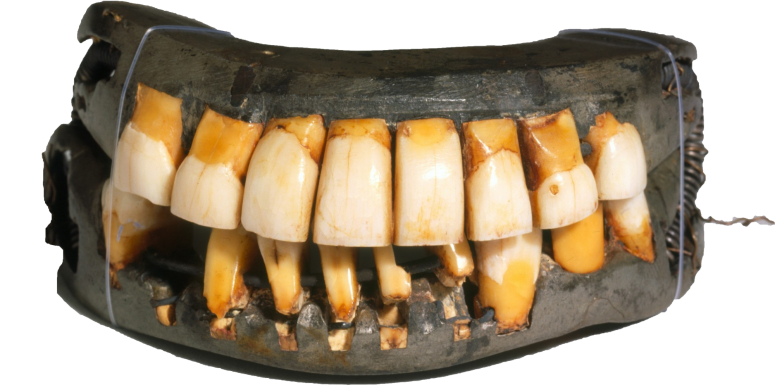 These dentures are in the collection at Mount Vernon – the only remaining full-set in existence.