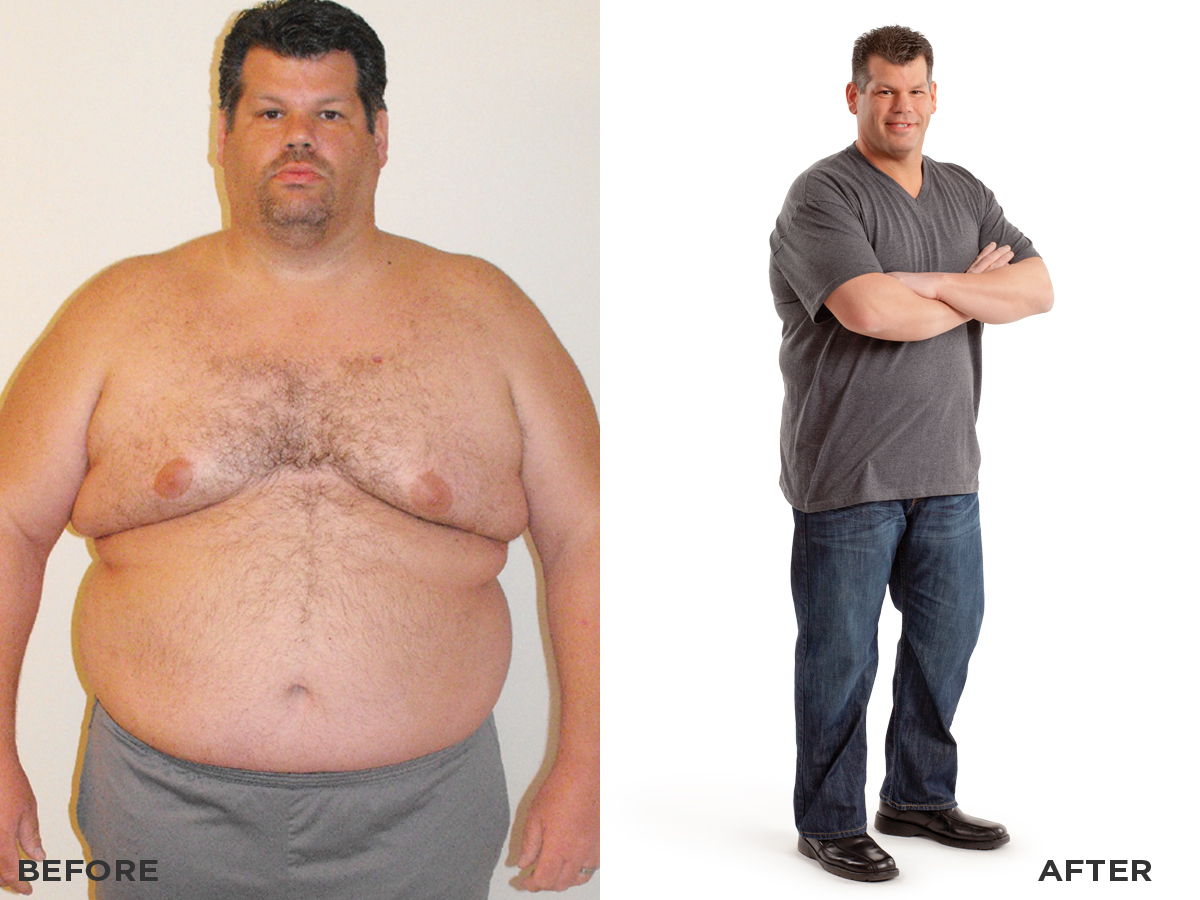richard-r-before-after.jpg