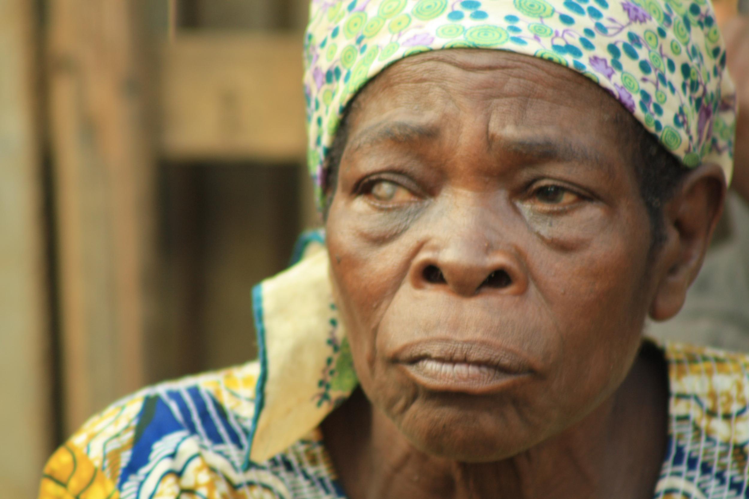 woman with milky eye.jpg