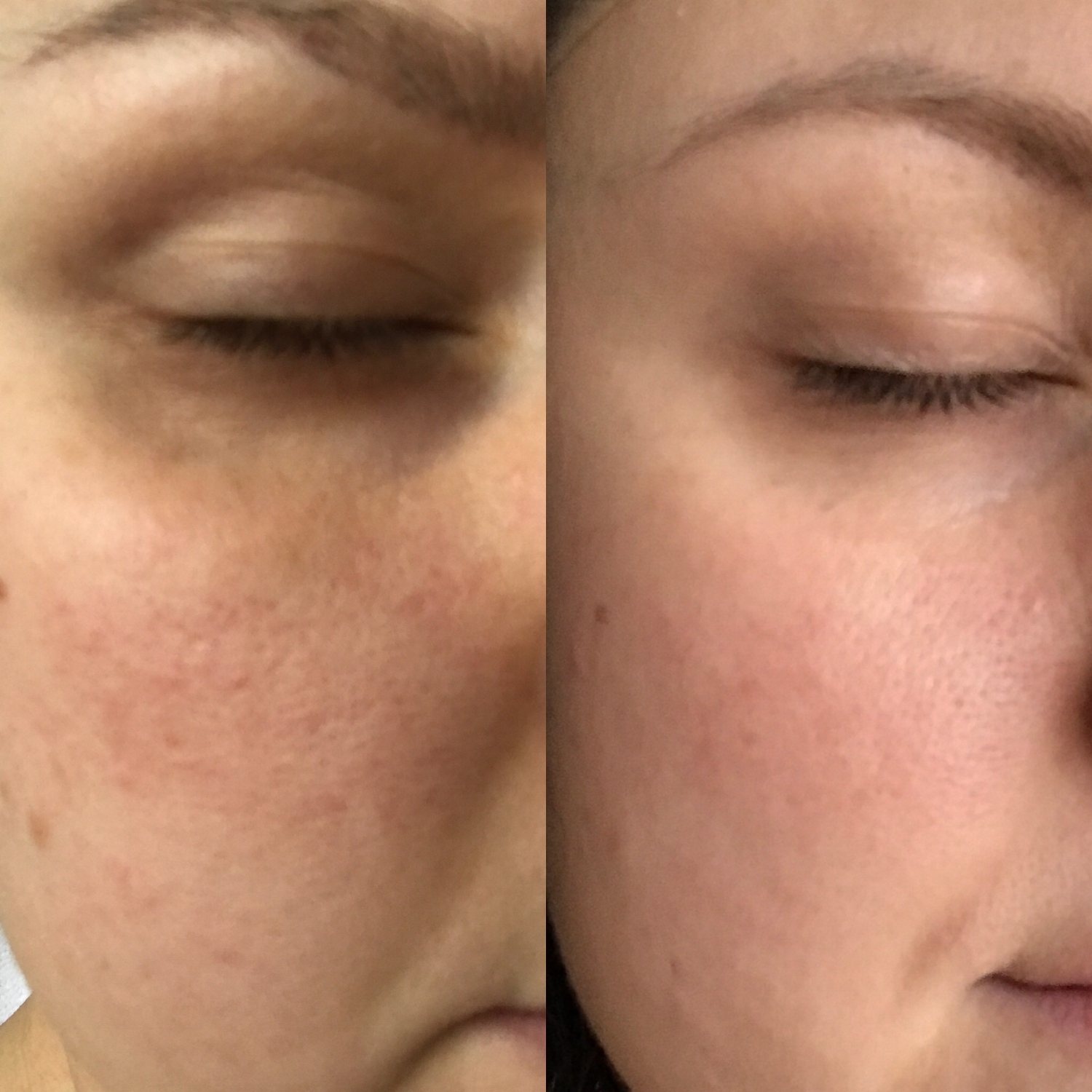 Before & After  Don't look too closely, gosh this is embarrassing, but as you can see my skin looks much smoother.