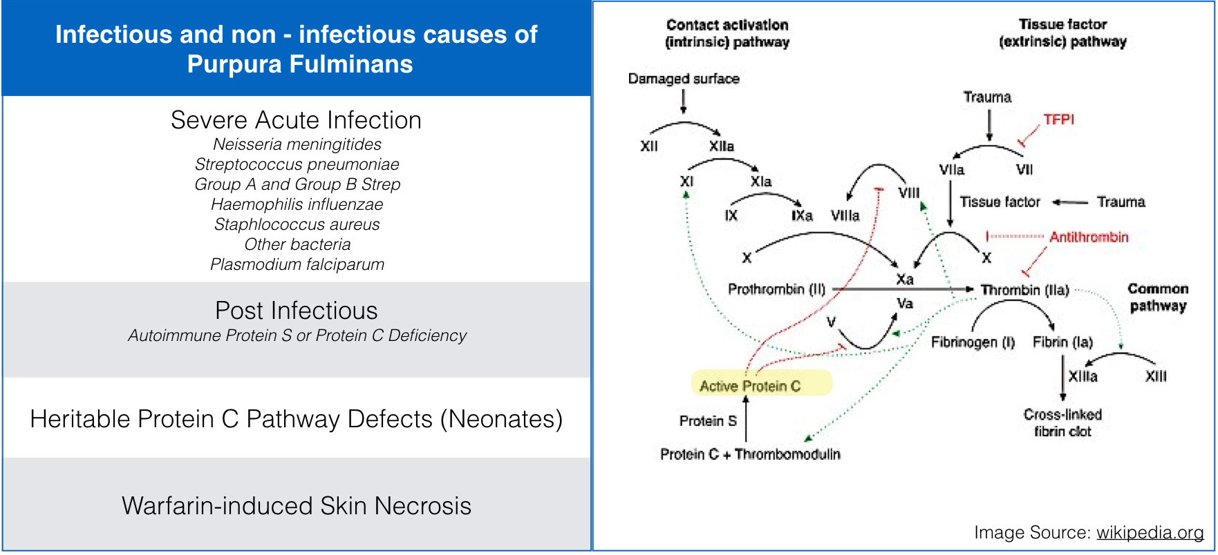 Protein C deficiency is the final common pathway of the multiple etiologies of Purpura Fulminans, including congenital, infectious, autoimmune, and drug-induced causes .