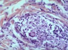 Tuberculoid granuloma