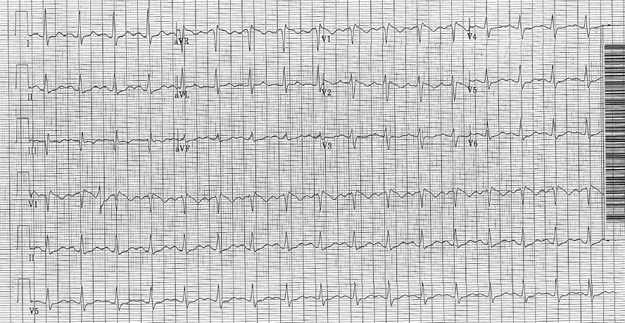 EKG in a patient with a tricyclic antidepressant overdose. The QRS duration here was 122 ms. Note the tall R' in aVR, which is more subtle than the diphenhydramine overdose EKG above.