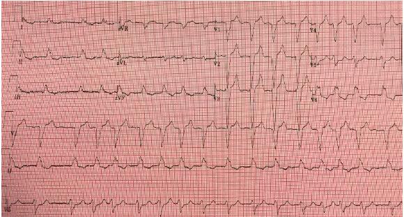 Repeat EKG #1, after treatment for hyperkalemia