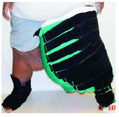 compression for lymphedema