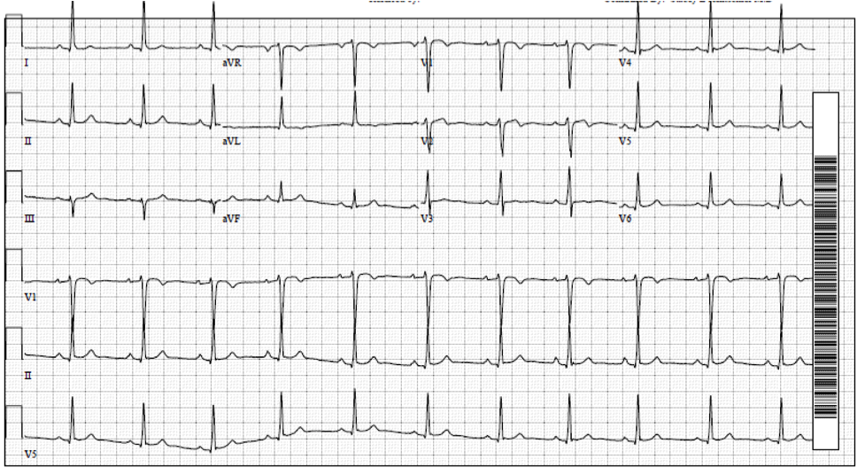 The patient's post-admission EKG. Wellen's waves are appreciated in V1 and V2.