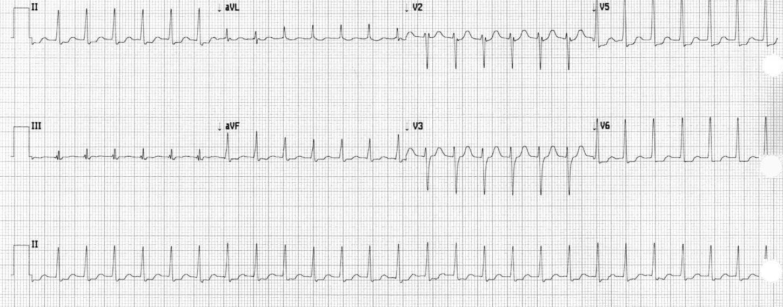 EKG SVT.png
