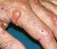 porphyria cutanea tarda in an alcoholic