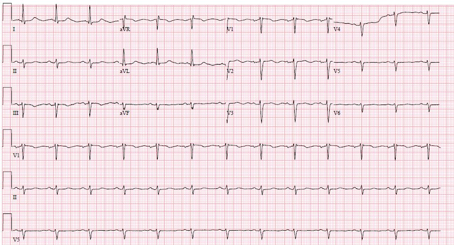 EKG of our patient unchanged from 2014