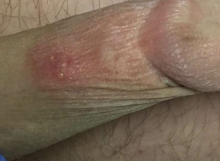 could these rashes by related?