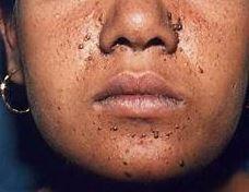 skin manifestations of tuberous sclerosis include adenoma sebaceum