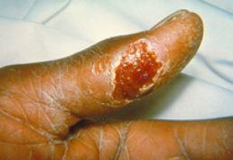 Ulceroglandular tularemia