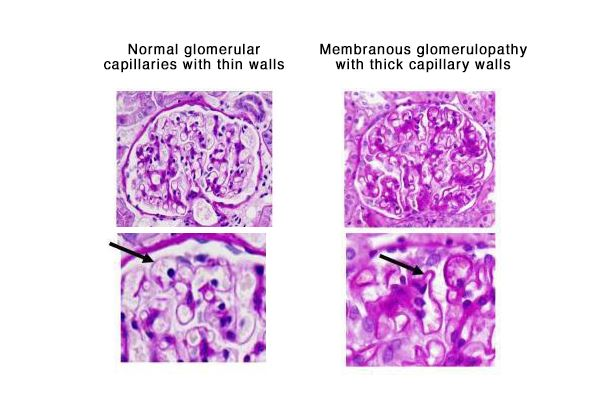 pathologic findings of membranous glomerulonephropathy