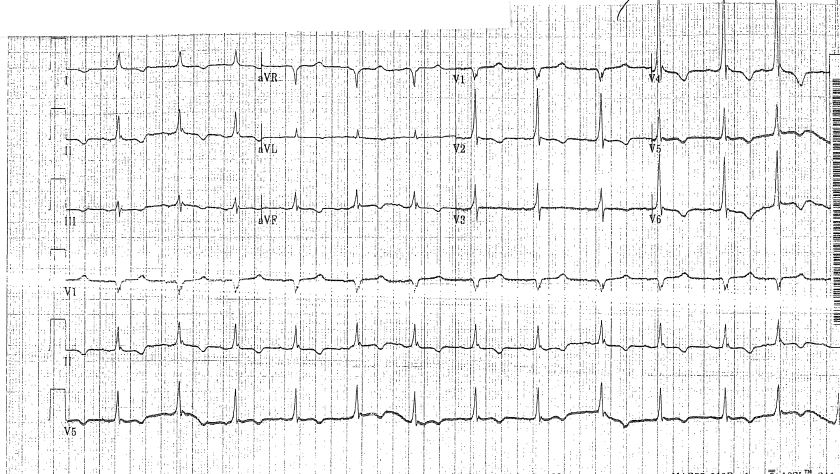 Ischemic changes have resolved