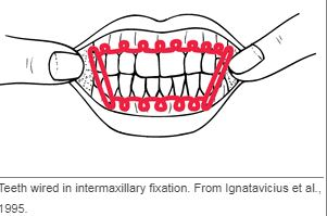 intermaxillary fixation.JPG