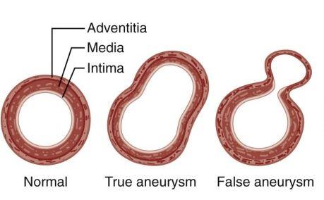 aneursym.JPG