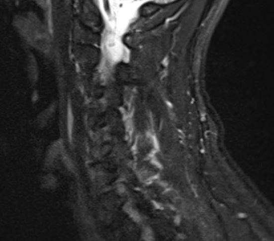On T2 MRI the injury appears white over tthe posterior cervical spines
