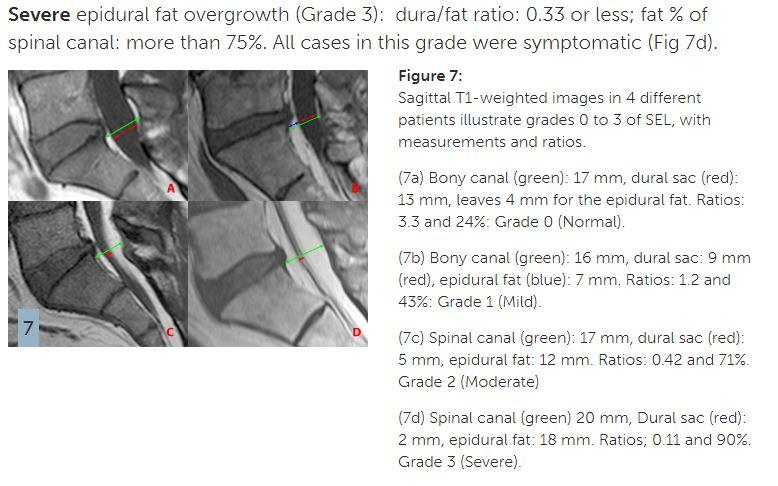 lipomatosis grade II.JPG