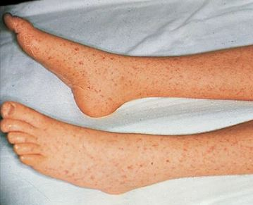 typhoid rose spots