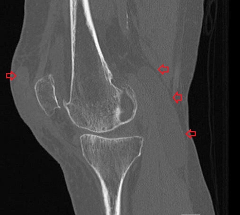 Baker's cyst and prepatellar hematoma