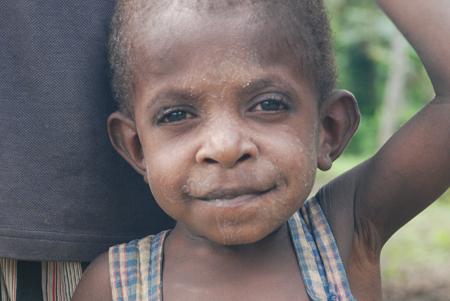 skin conditions in children (2).jpg