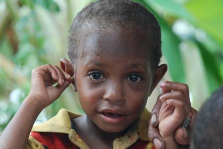 skin conditions in children (1).jpg
