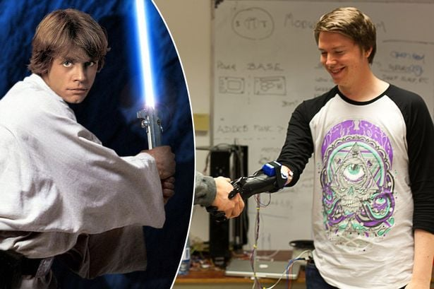 Man born without hand gets Luke Skywalker hand
