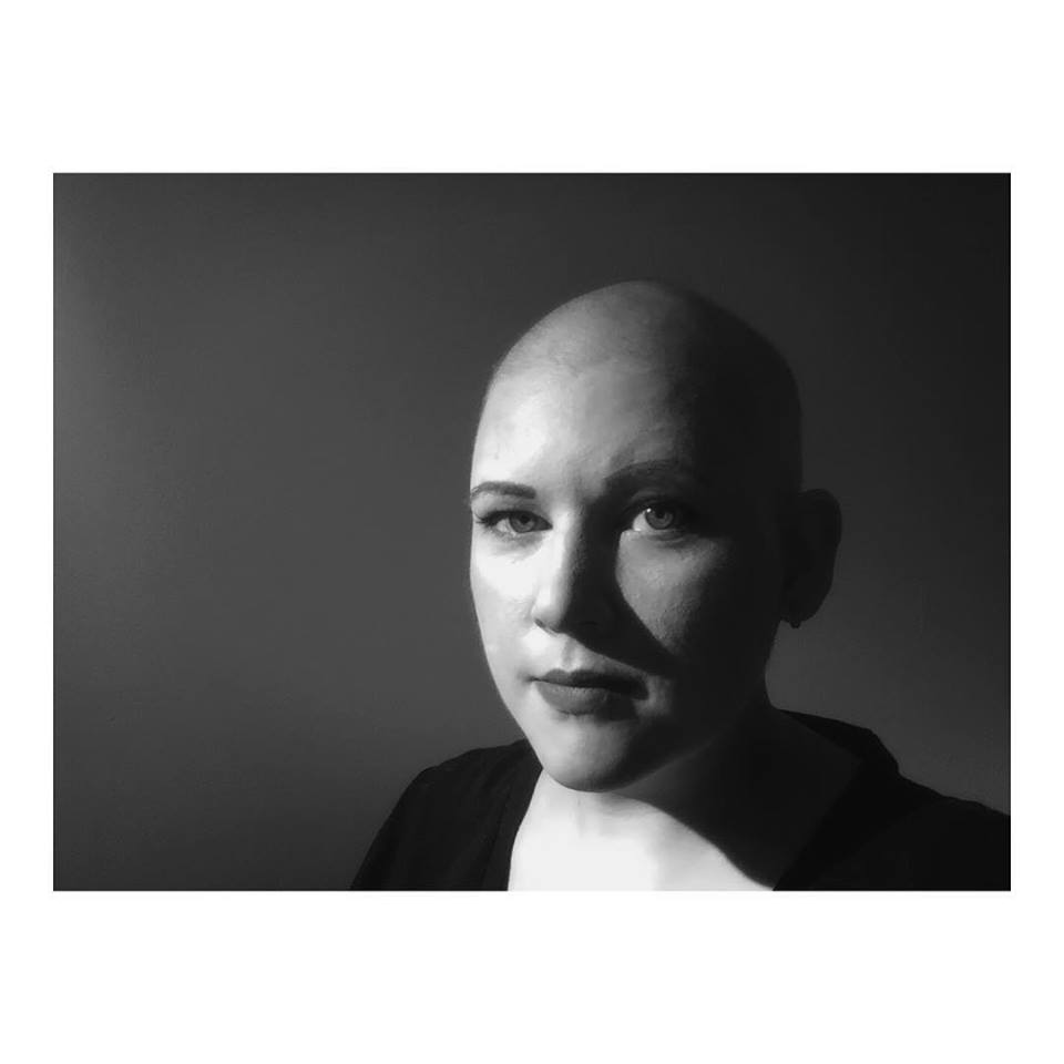 Heather first let us see into the reality of her fight against cancer with this picture on social media. Her caption:   This is me. This is my truth.   www.tisHeather.blogspot.com   #FightLikeAGirl