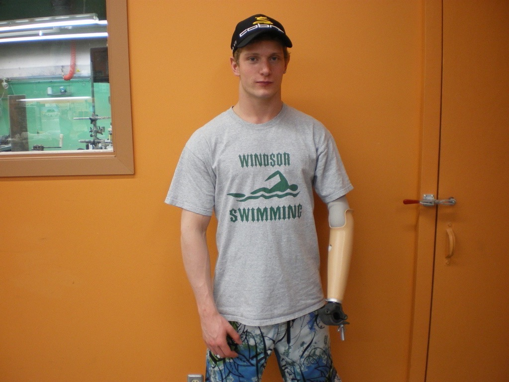 young man with transradial prosthesis and weight-lifting attachment