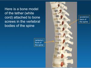 Example of Vertebral Body Tethering (VBT)