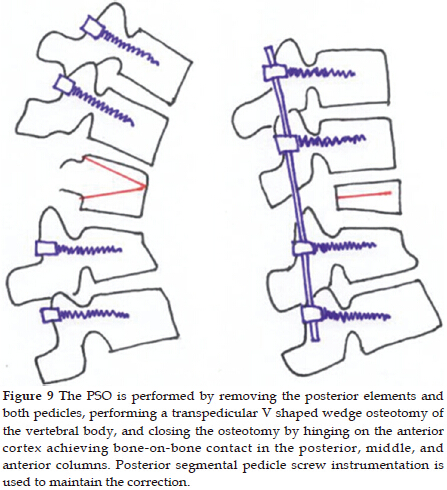 Diagram of Wedging Osteotomy