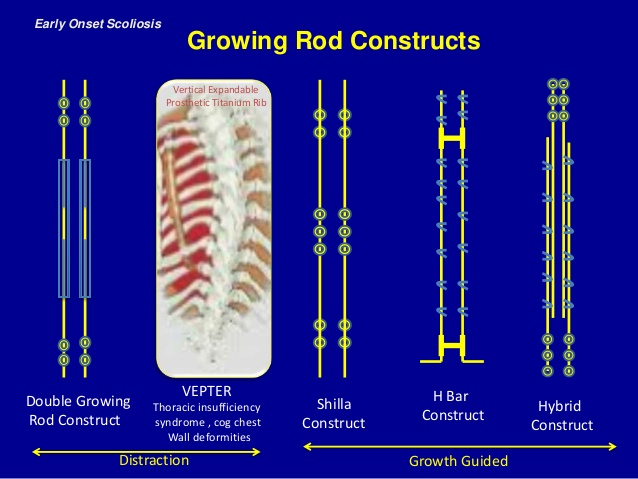 Comparison of different Growing Rod Constructs