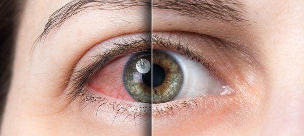 Bloodshot eyes are a common sign of marijuana intoxication.  courtesy: Boerejongens
