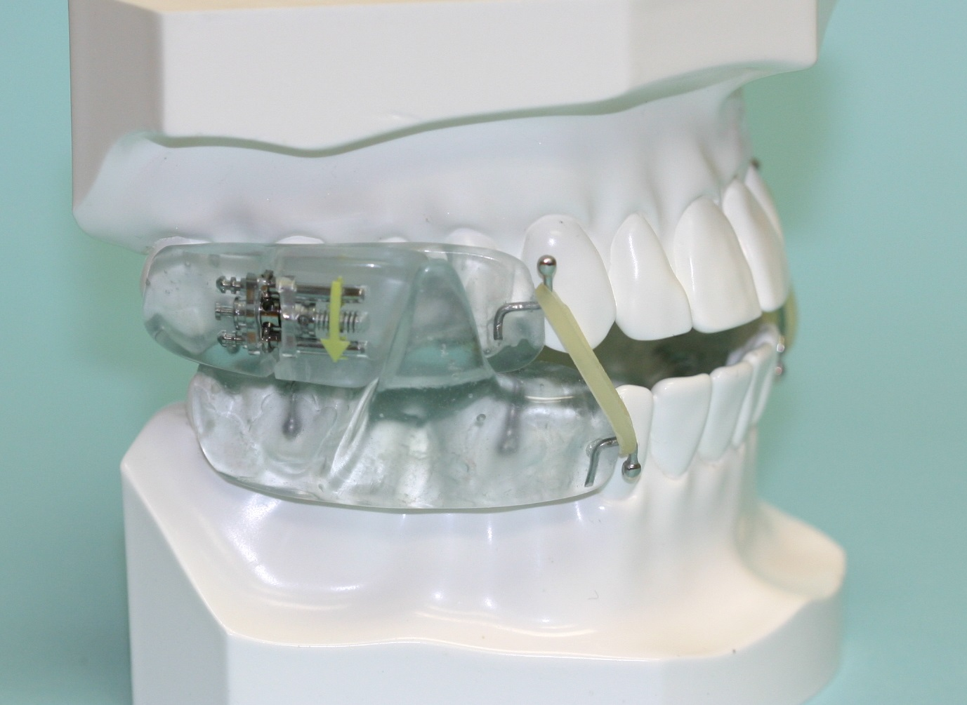Picture 5: Elastic hooks may be added to the device to help guide the jaw back to its desired position. This is often beneficial for those patients that sleep on their back and keep their mouth open while sleeping.