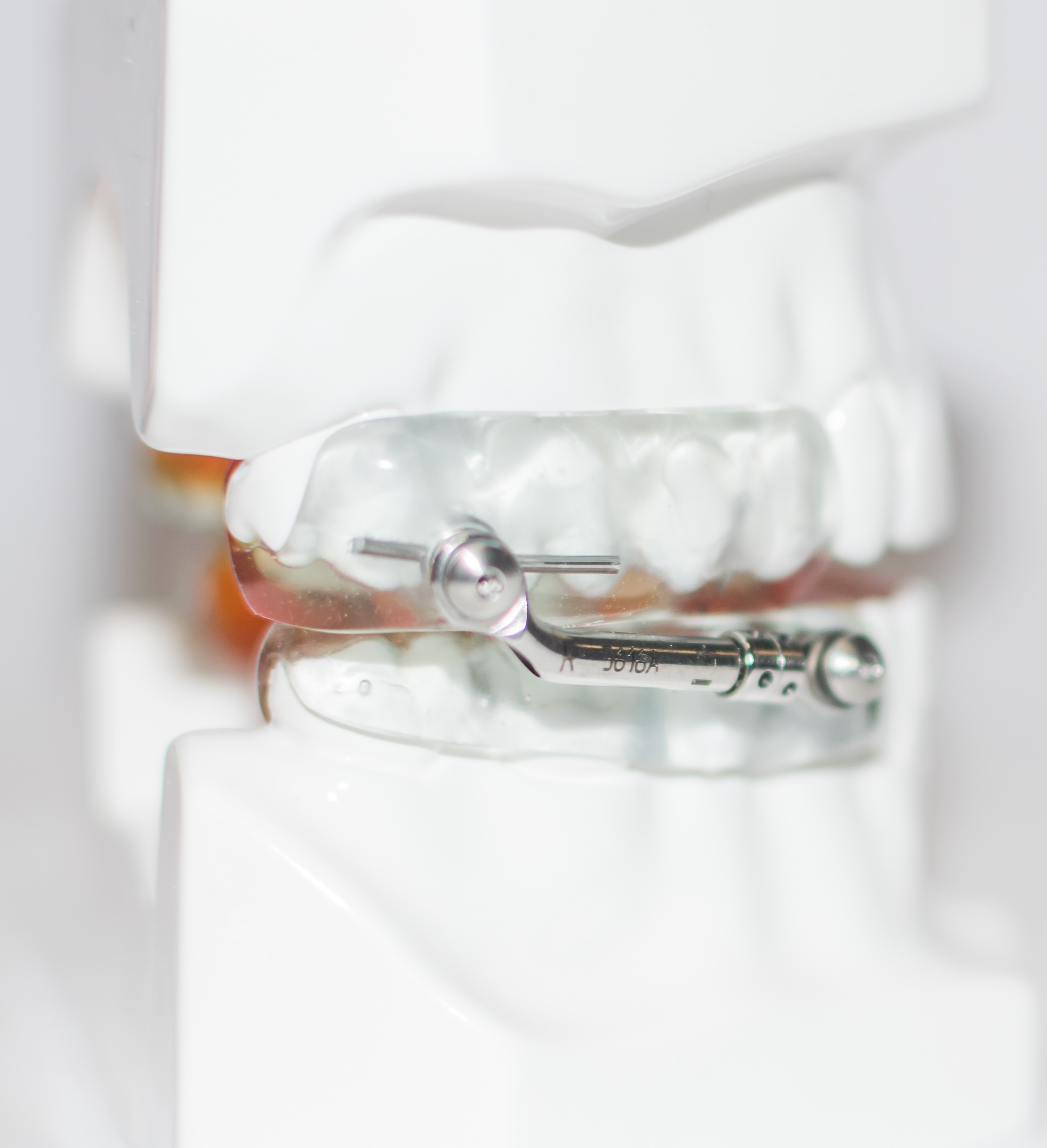 Oravan Herbst has an upper and lower component connected with telescopic arms. The arms allow for easy vertical and lateral movement, which is often beneficial for those patients that brux or grind their teeth while sleepeing.