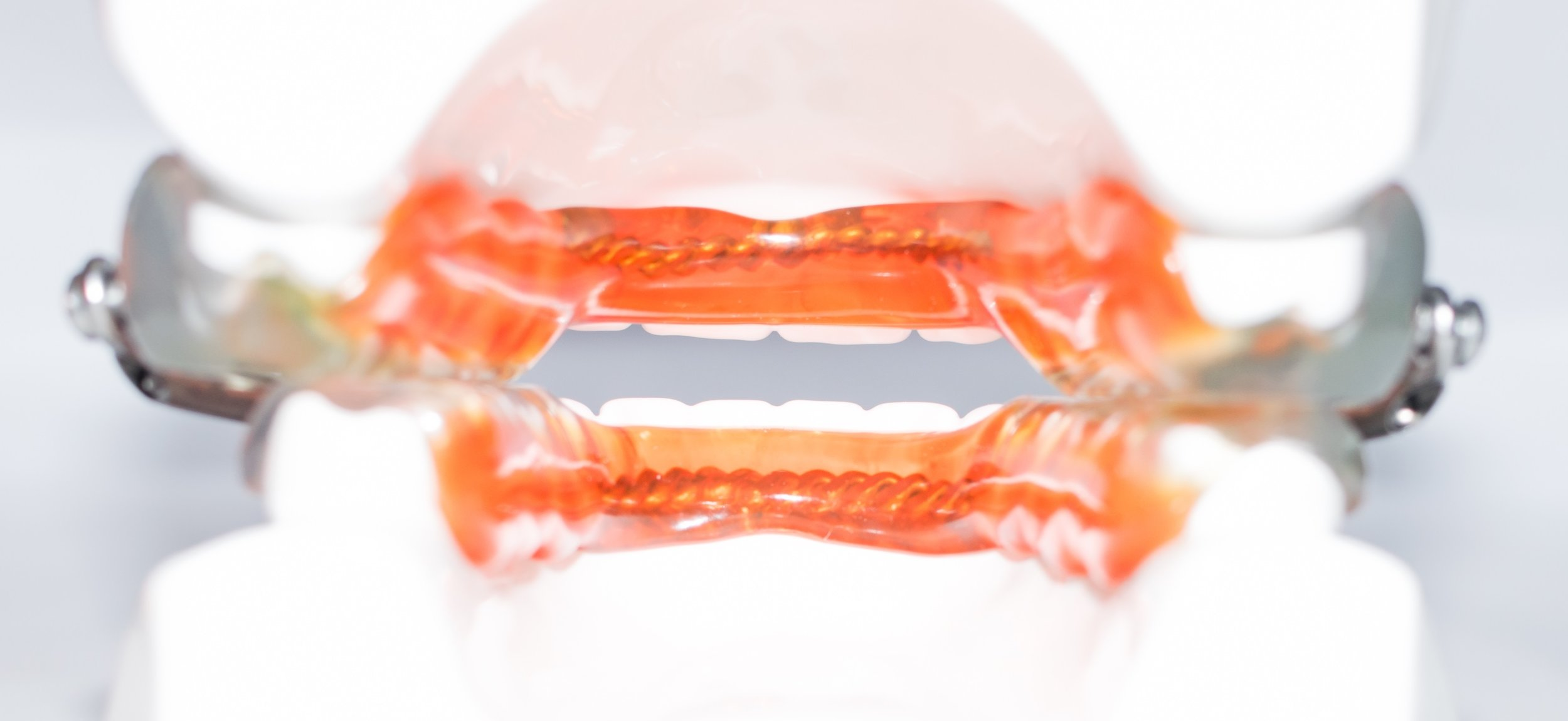 The rear view of the device further illustrates the open anterior. We make sure to keep the lingual areas of the devices as thin as possible, allowing for maximum tongue space and comfort.  Please note the orange shading is for illustration purposes only. All devices are made in clear acrylic.