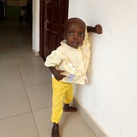 - The abandoned child after treatment is able to smile and stand by herself!