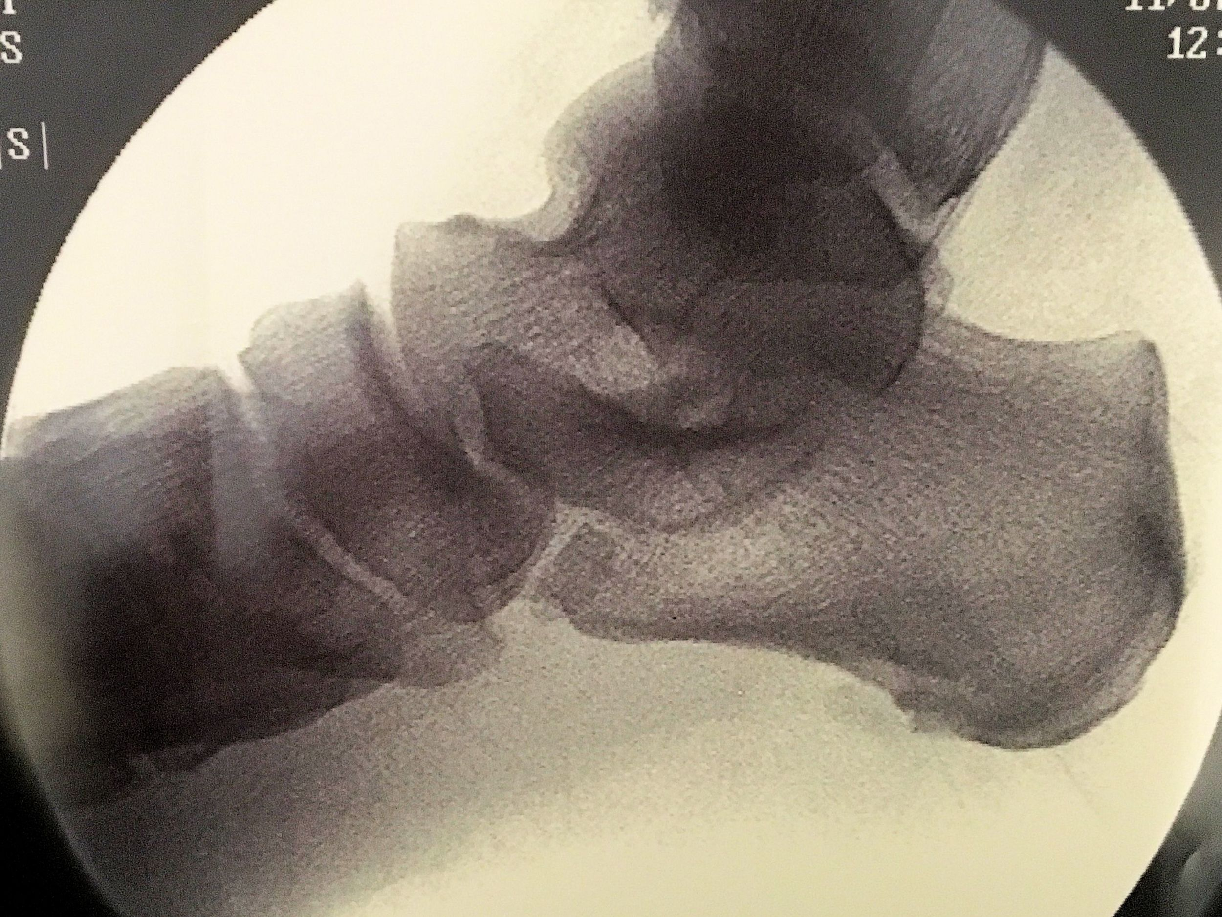 heel spur after.jpg