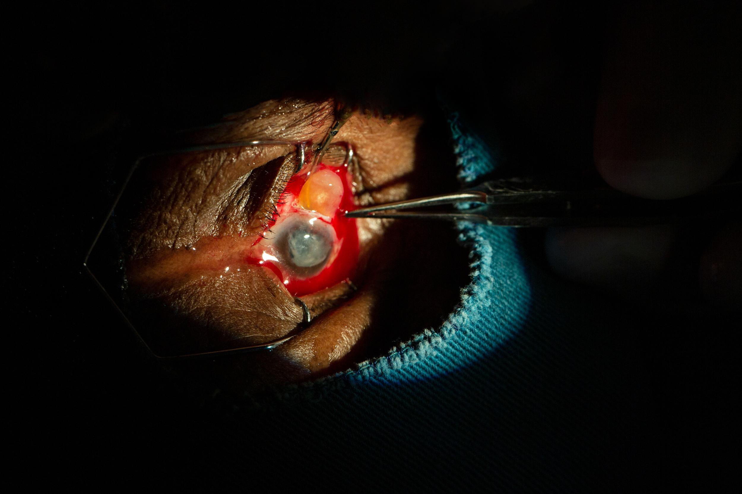 Cure Blindness-7944.jpg