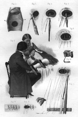 Illustration of Sims repairing a vesico-vaginal fistula with silver wire sutures (1870)