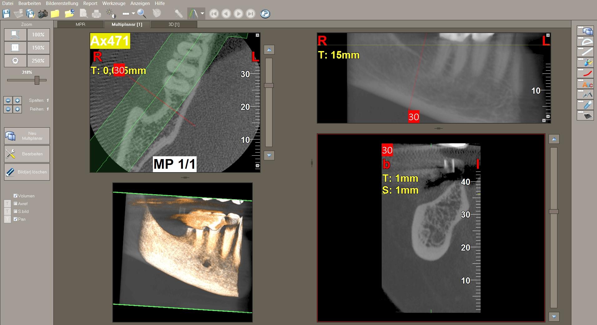 """Diagnostik zur Eruierung des Knochenangebotes und Kieferkammverlaufes vor einer Implantation: Auf der """"normalen"""" 2-D-Aufnahme zeigte sich ein vertikal ausreichendes Knochenangebot. Bei der intraoralen Diagnostik ergab sich jedoch, daß der Unterkieferknochen eine Einziehung unterhalb der geplanten Implantat-Position aufweist, weshalb präperativ zur Absicherung eine 3-D-Diagnostik erfolgte."""