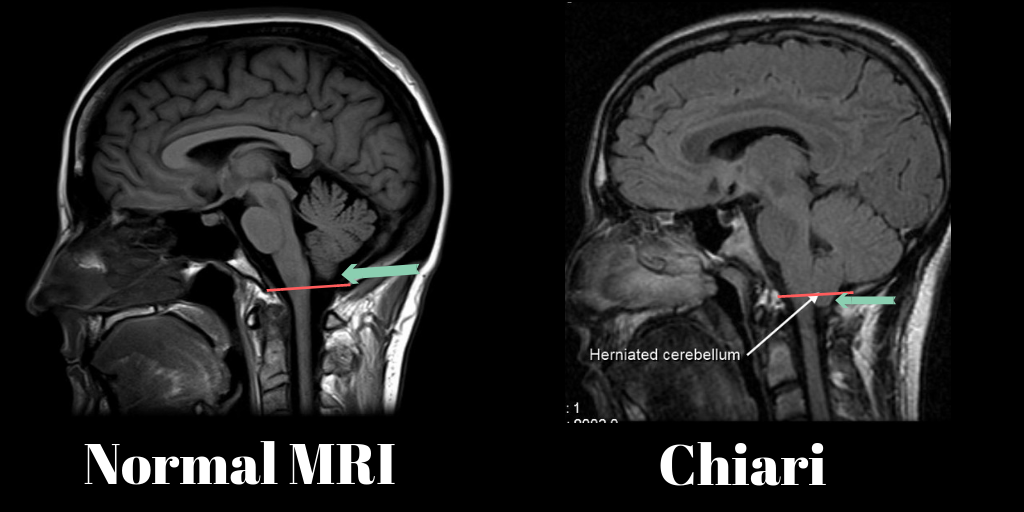 This scan image came from www.chiropractorwellington.com