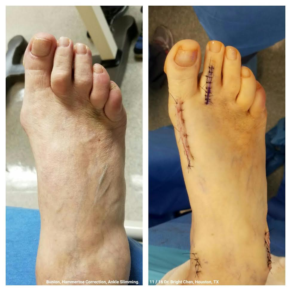 Before & After, Immediate Post-Op.  Bunion and Second Digit Hammertoe Correction with Ankle Slimming Procedure.  Performed Nov 2016 by Dr. Bright Chen, Foot & Ankle Specialist, Houston, TX.
