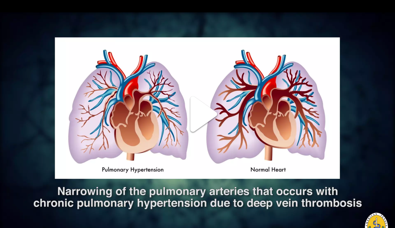 Pulmonary Embolism.png